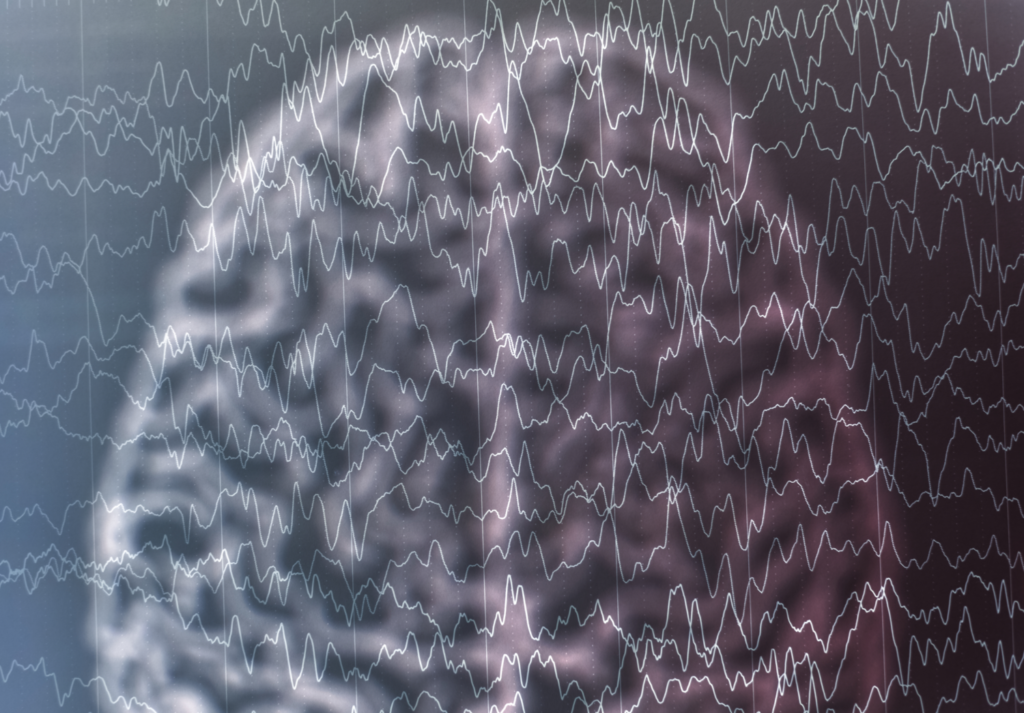 The Search for Seizures in EEG